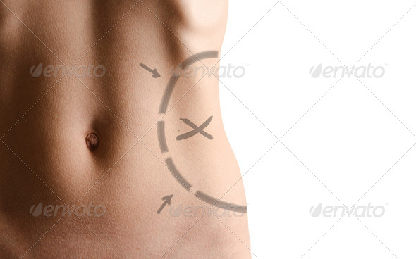 PhotoDune Female waistline about to perform liposuction 1701549