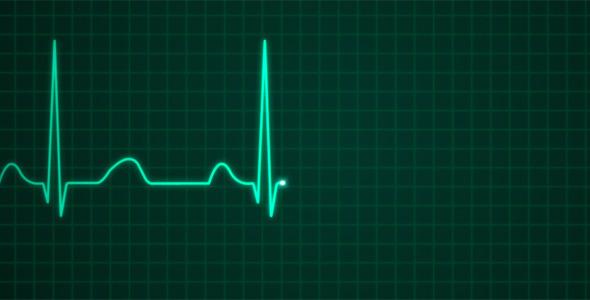 VideoHive EKG Electrocardiography 2317767