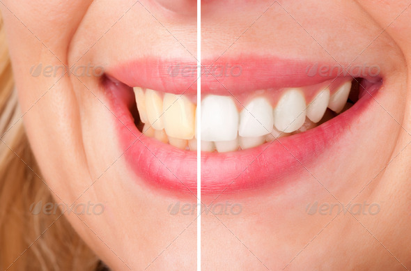 Dental Whitening - Stock Photo - Images