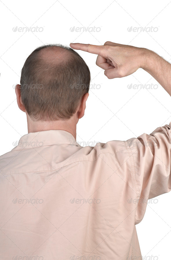 Human hair loss - adult man hand pointing his bald head - Stock Photo - Images