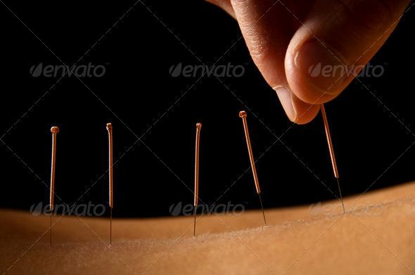 PhotoDune Acupuncture 301377