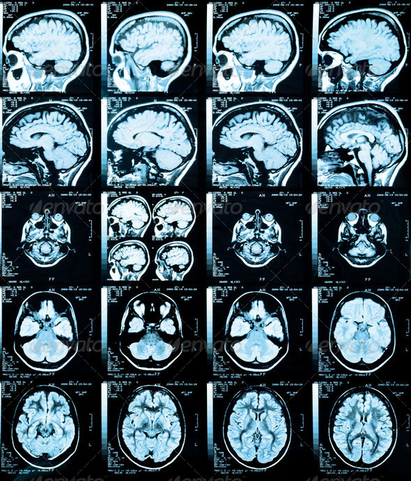 X-Ray Brain - Stock Photo - Images