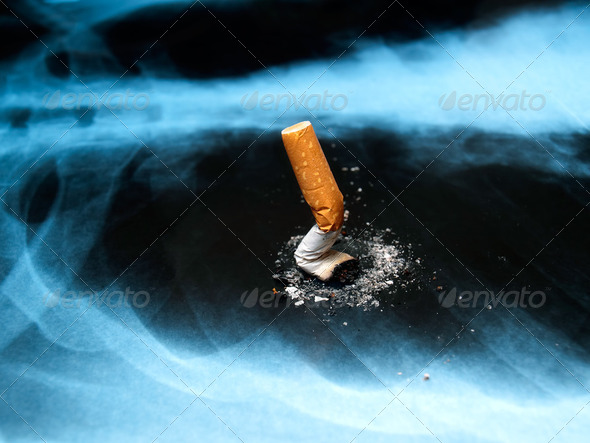 Smoking issues - Stock Photo - Images