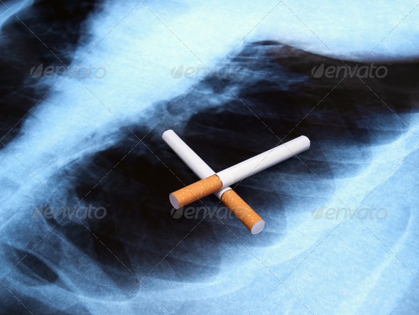 Cancer spot - Stock Photo - Images