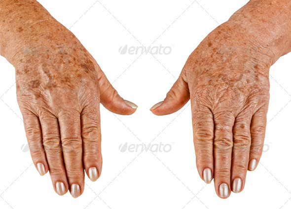 PhotoDune Hands of an old woman close-up 3883284