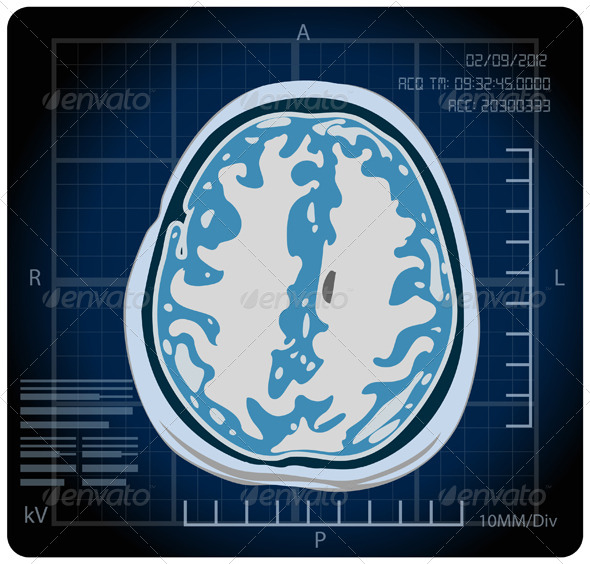 GraphicRiver MRI Magnetic Resonance Imaging Illustration 5693314