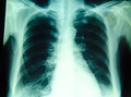 chest x-ray for diagnosis in hospital - PhotoDune Item for Sale