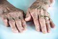 old woman hand with wedding ring - PhotoDune Item for Sale