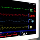 Intensive Care Unit ECG Monitor - VideoHive Item for Sale