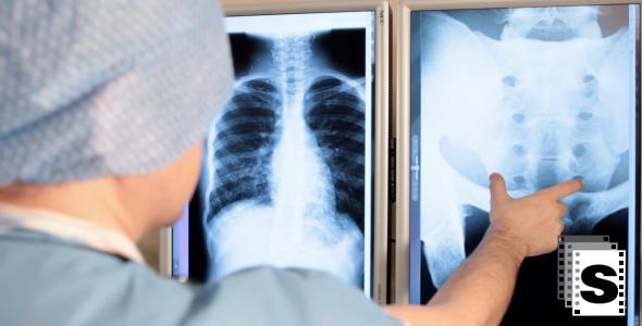 Surgeon Examine X-ray