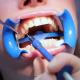 Teeth Whitening - VideoHive Item for Sale