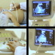 Ultrasound Examination of the Abdomen - VideoHive Item for Sale