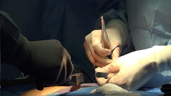 VideoHive Surgeon s Hands and Medical Gloves 9715112