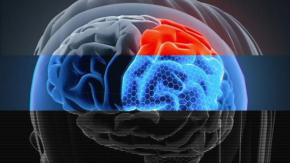Female Brain 3