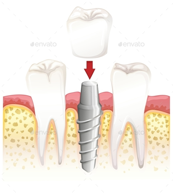 GraphicRiver Dental Crown Procedure 10259310