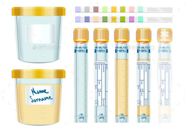 GraphicRiver Urinalysis Yellow Cap Tubes Set 10310384