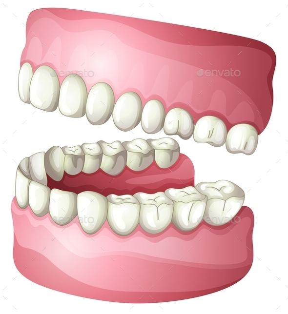 GraphicRiver Denture 10390776