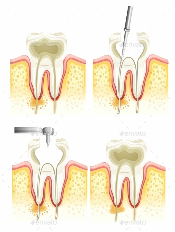 GraphicRiver Root Canal Process 10475776