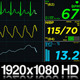 EKG Display Monitor