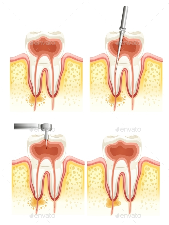 GraphicRiver Dental Root Canal 10833850