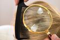 Dermatologist Looking Blonde Hair Through Magnifying Glass - PhotoDune Item for Sale