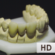 Overview Of Dentures - VideoHive Item for Sale