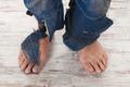 poor feets - PhotoDune Item for Sale