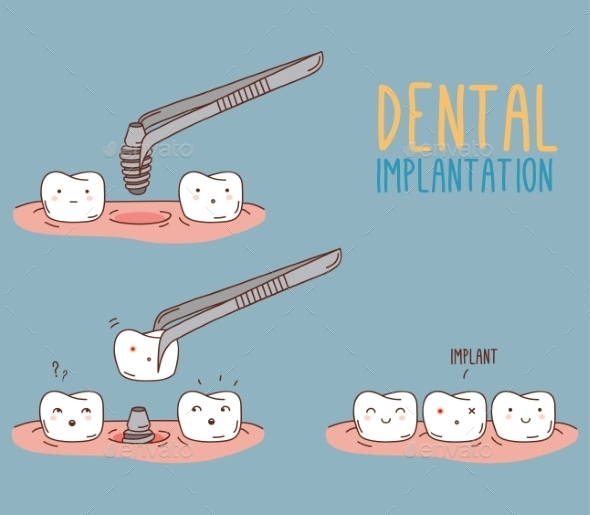 GraphicRiver Comics About Tooth Replacement 11443578