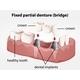 Fixed Partial Denture Bridge - GraphicRiver Item for Sale