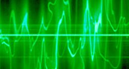 My audio items