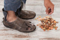 poor feet - PhotoDune Item for Sale