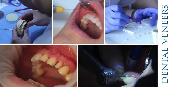 Grinding Dental Veneers Pack