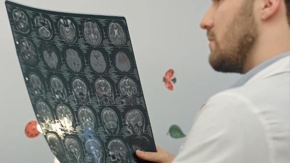 VideoHive Senior Man Doctor Examines MRI Image In Hospital 12172299