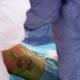 Orthopedic Surgeon Operation
