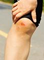 Sports injured knee