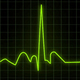 Heartbeat Monitor - Electrocardiogram