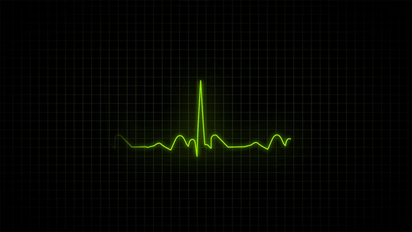 Download Heartbeat Monitor - Electrocardiogram nulled download