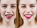 Perfect teeth before and after braces