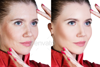 Photodune Woman before and after cosmetic procedure 18632695