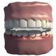 Bruxism (Teeth Grinding)