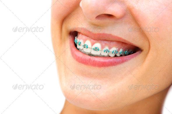 PhotoDune Teeth Braces 1907246