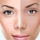 Skin - 20 Retouching Actions