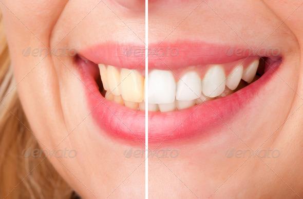 PhotoDune Dental Whitening 2733947