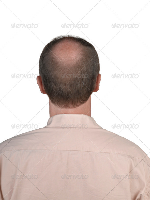 Human hair loss - Stock Photo - Images