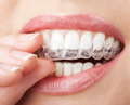 teeth with whitening tray - PhotoDune Item for Sale