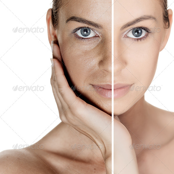 PhotoDune Woman With Spotty Skin With Deep Pores And Blackhead And Healed Soft Skin 2939323
