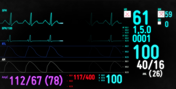 VideoHive Electrocardiogram Monitor 105484