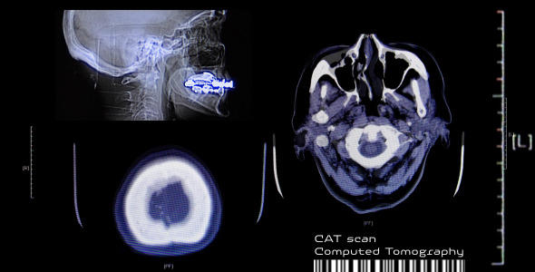 VideoHive CAT Scan CT Computed Brain Tomography On Monitor 3172047