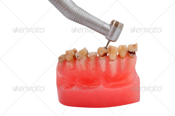jaw and dental handpiece - Stock Photo - Images