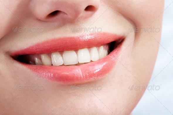 smile veneer com